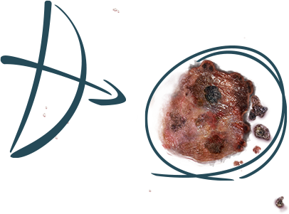 melanoma-spot-hero