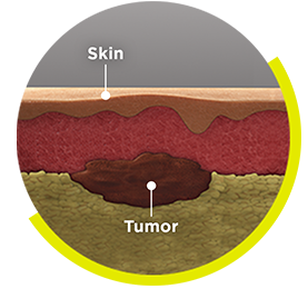 IMLYGIC® Can Be Injected into 3 Types of Melanoma Tumors: Tumors just under the surface of the skin