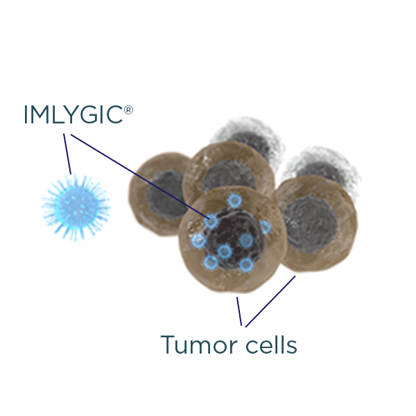 IMLYGIC® is injected into melanoma tumors on your skin or lymph glands