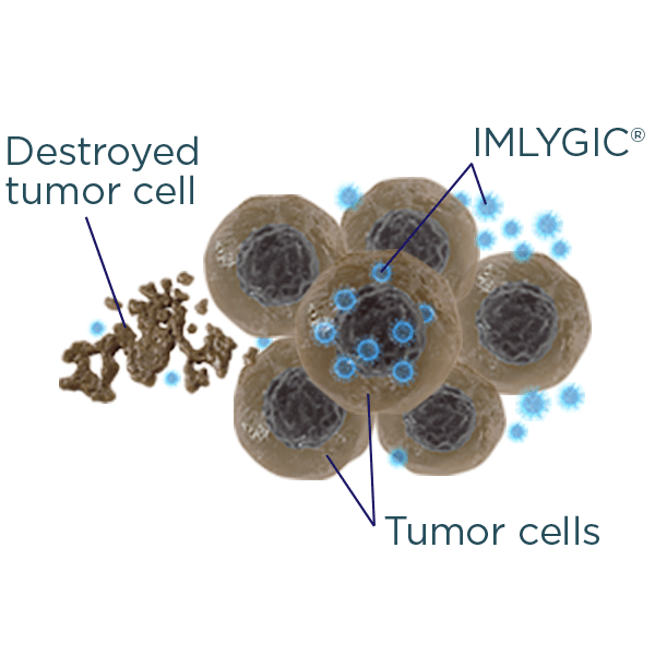IMLYGIC® continues to invade neighboring tumor cells