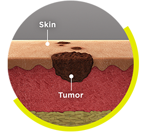 IMLYGIC® Can Be Injected into 3 Types of Melanoma Tumors: Tumors on the surface of the skin